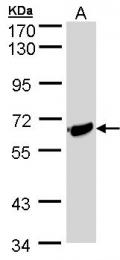 GTX106204 - IL1RL1 / ST2