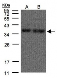 GTX106208 - hnRNP core protein A1 / HNRNPA1