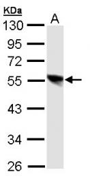 GTX106221 - TFDP1