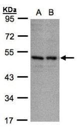 GTX106239 - CD158e / KIR3DL1