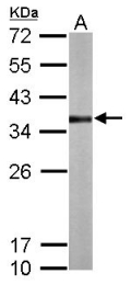 GTX106257 - Thiosulfate sulfurtransferase (TST)