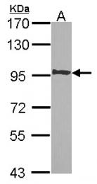 GTX106284 - MLLT10 / AF10