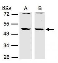 GTX106288 - Drebrin-like protein (DBNL)