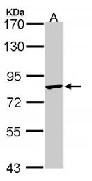 GTX106290 - TRIM36 / RNF98