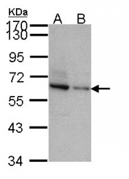 GTX106295 - TOM1L2