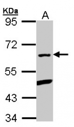 GTX106333 - PLRG1