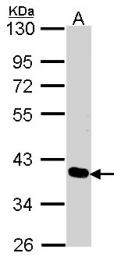 GTX106353 - PDLIM4
