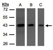 GTX106371 - Neuroserpin / SERPINI1