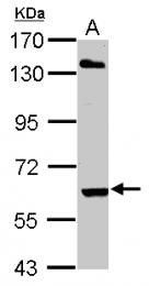 GTX106404 - ARIH2 / TRIAD1