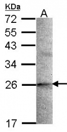 GTX106422 - Stathmin-2 / STMN2