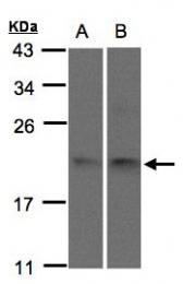 GTX106456 - Sorting nexin-12 (SNX12)