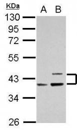 GTX106472 - Apolipoprotein L1 (Apo L1)