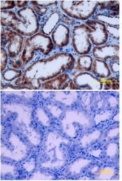 GTX10652 - Erythropoietin / EPO