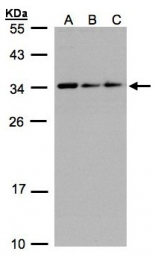GTX106633 - Nuclear protein Hcc-1