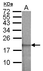GTX106703 - N-acetyltransferase 15