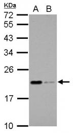 GTX106750 - Apolipoprotein M (Apo M)