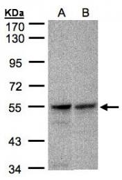 GTX106823 - FOXRED1
