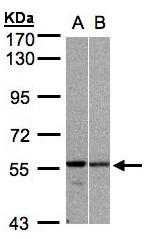 GTX106952 - PRPF19 / NMP200