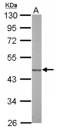 GTX107002 - SUCLG2