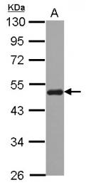 GTX107045 - Sorting nexin-5 (SNX5)