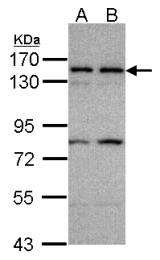 GTX107063 - CD140b / PDGFRB