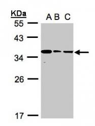 GTX107137 - Bisphosphoglycerate mutase