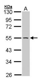 GTX107443 - Integrin-linked protein kinase