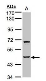 GTX107509 - Sphingosine kinase 1 (SPHK1)