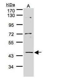 GTX107558 - PFTK2 /  CDK15