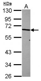 GTX107562 - RPS6KB1 / STK14A