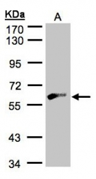 GTX107563 - Glycerol kinase 2