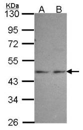 GTX107614 - Phosphoglycerate kinase 1 (PGK1)