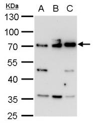 GTX107678 - RELA / NF-kB p65