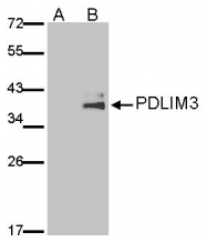 GTX107697 - PDLIM3