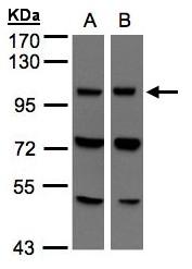 GTX107706 - RNF108 / VPS11