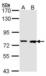 GTX107713 - Rabenosyn-5 / ZFYVE20