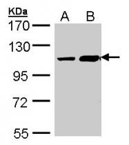 GTX107718 - TRAK2 / ALS2CR3