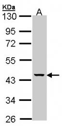 GTX107761 - Mevalonate kinase