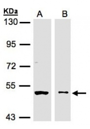 GTX107807 - Glycerate kinase