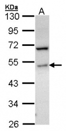 GTX107843 - Sphingosine kinase 1 (SPHK1)