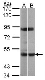 GTX107938 - MAPKAP Kinase-5
