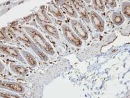 GTX108016 - Retinol-binding protein 1