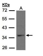 GTX108112 - CYSLTR1
