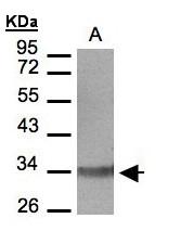 GTX108169 - LTB4R / BLTR