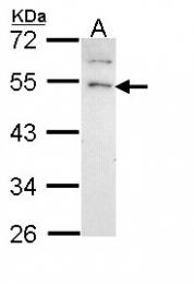 GTX108176 - Gastrin-releasing peptide receptor