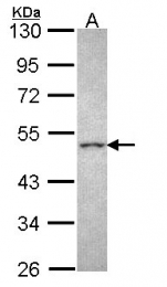 GTX108177 - CRHR2