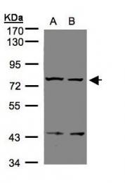 GTX108186 - Relaxin receptor 1 / RXFP1