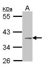 GTX108190 - MC1-R