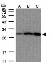 GTX108256 - Peroxiredoxin-4 / PRDX4