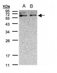 GTX108336 - XYLB / Xylulokinase